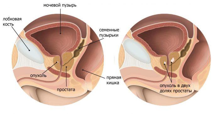 доброкачественная опухоль предстательной железы
