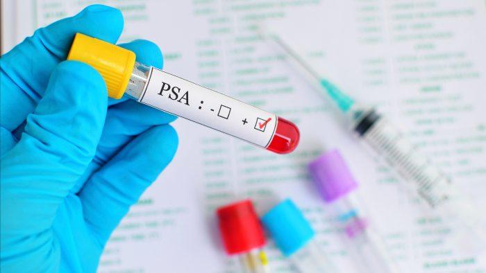 анализ крови на уровень ПСА