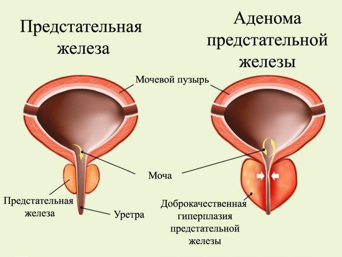 отек предстательной железы