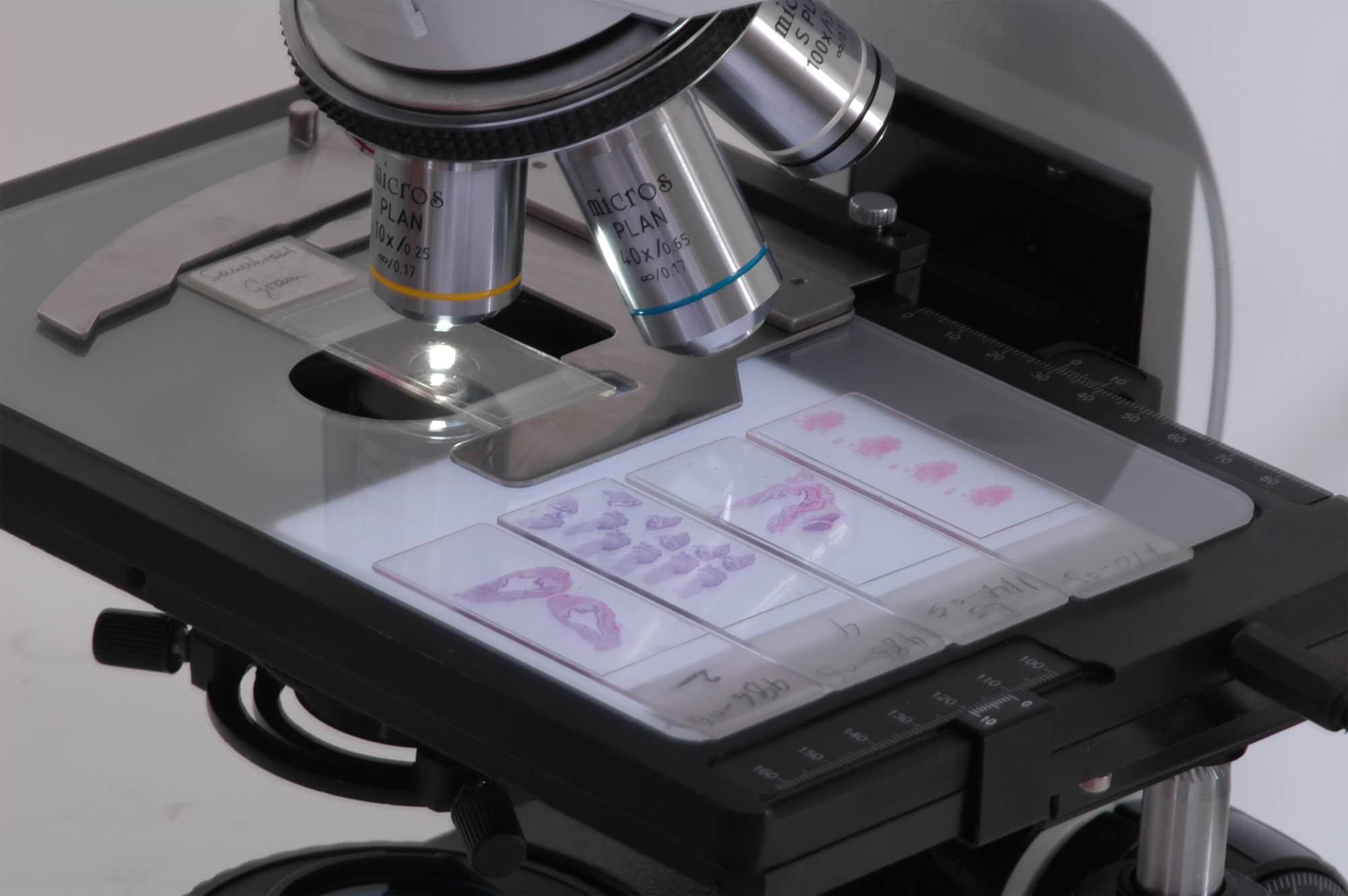 Мицелий в мазке: что это такое, нити гриба кандида норма в анализе на молочницу