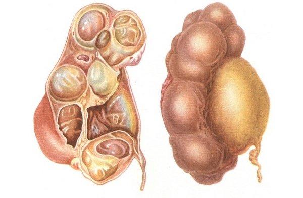 воспалительный процесс в семенных пузырьках