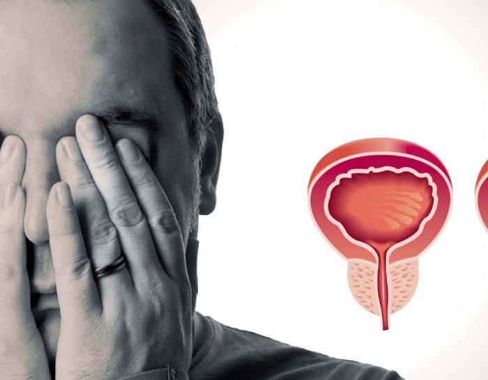 Что такое   уреаплазма специес и как е лечить