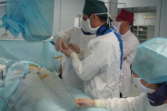 хирургическое удаление камней
