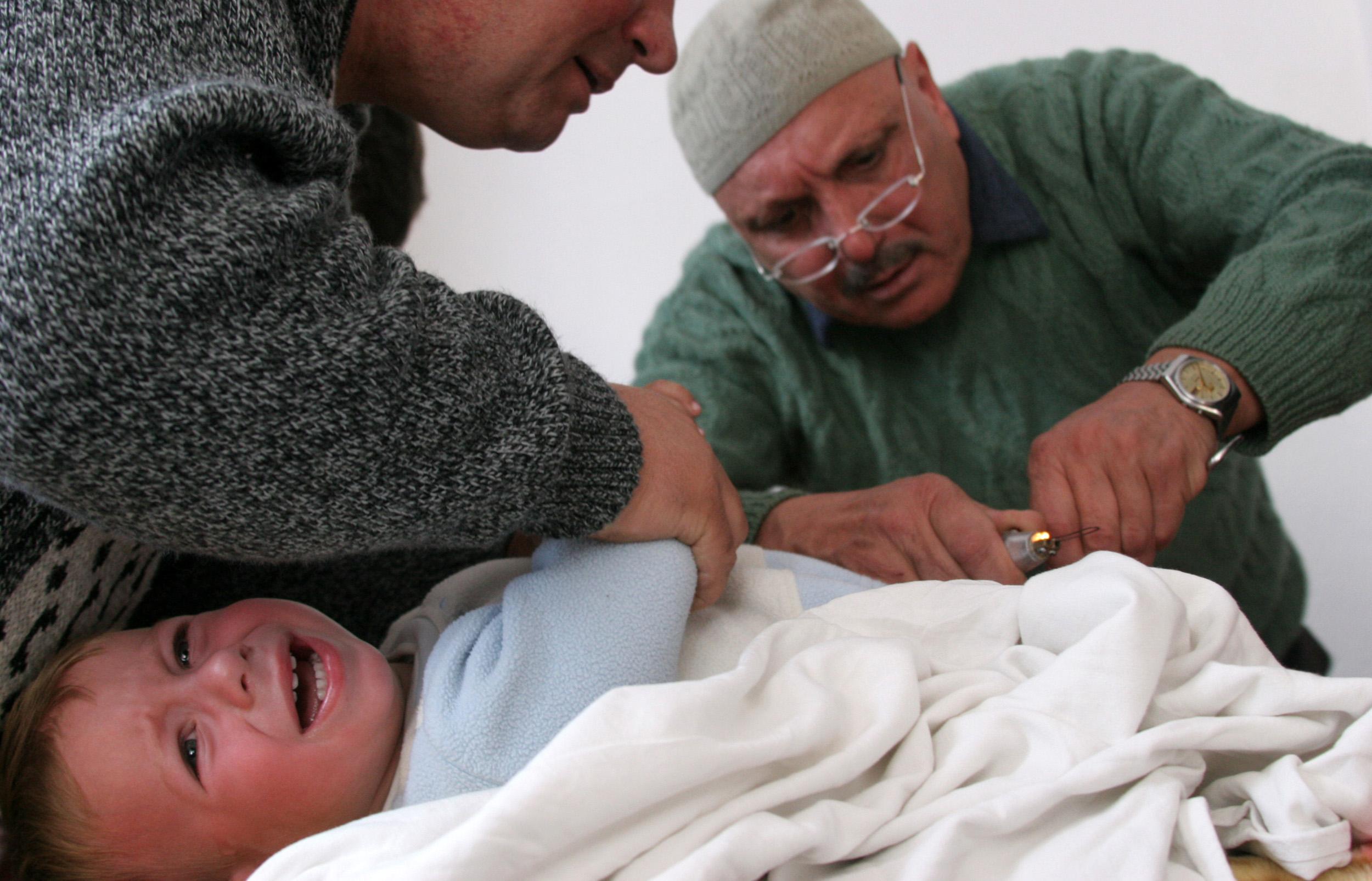 Обрезания в домашних условиях
