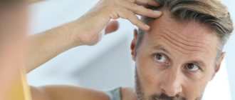 нормы выпадения волос у мужчин