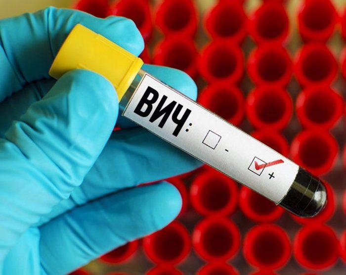вирус иммунодефицита
