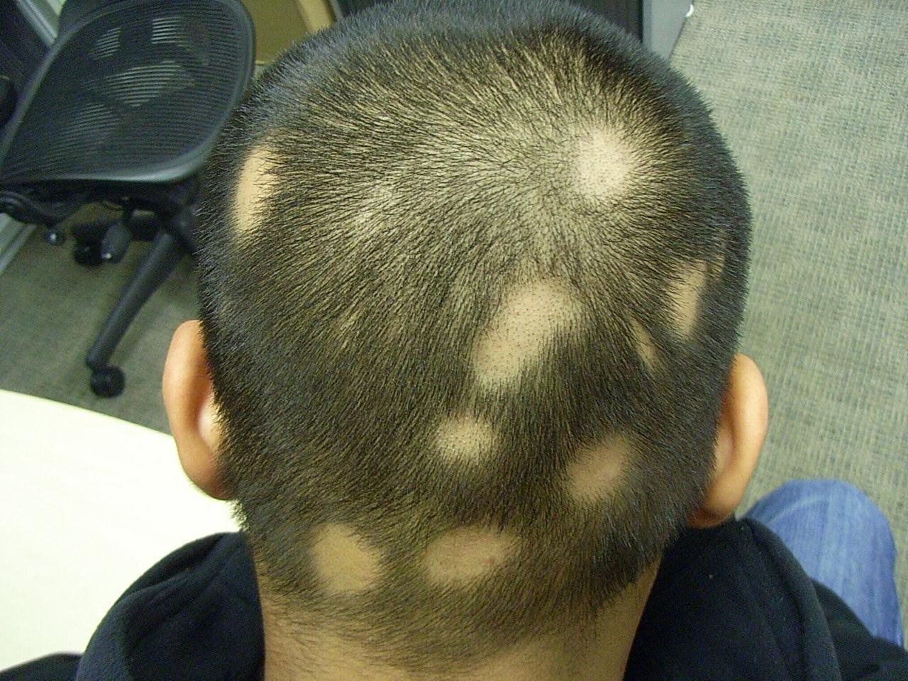 Как лечить алопецию у мужчин на голове
