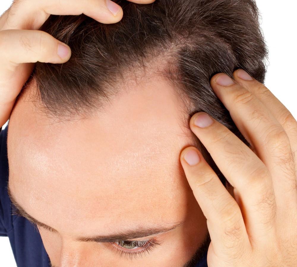 Какие таблетки пить от выпадения волос