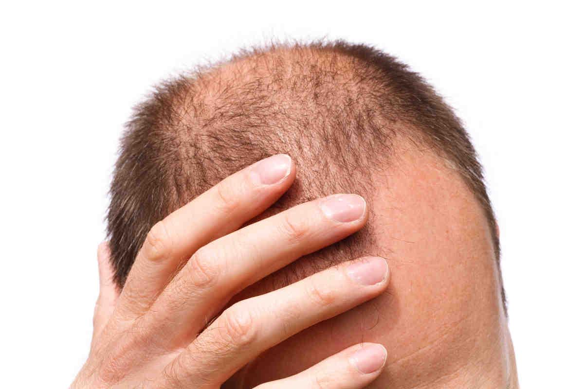 Сколько длится выпадение волос после стресса
