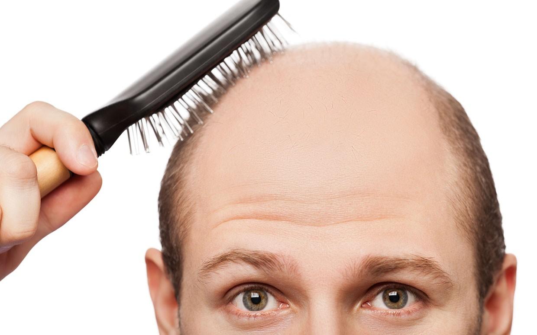 Плешь на голове: причины появления и лечение