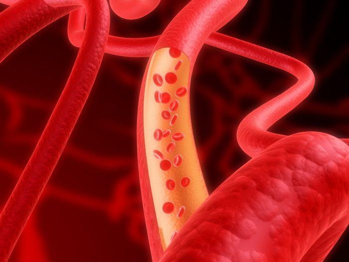 поражение кровеносных сосудов