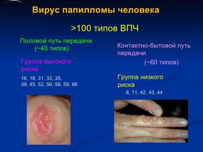 разновидность инфекции