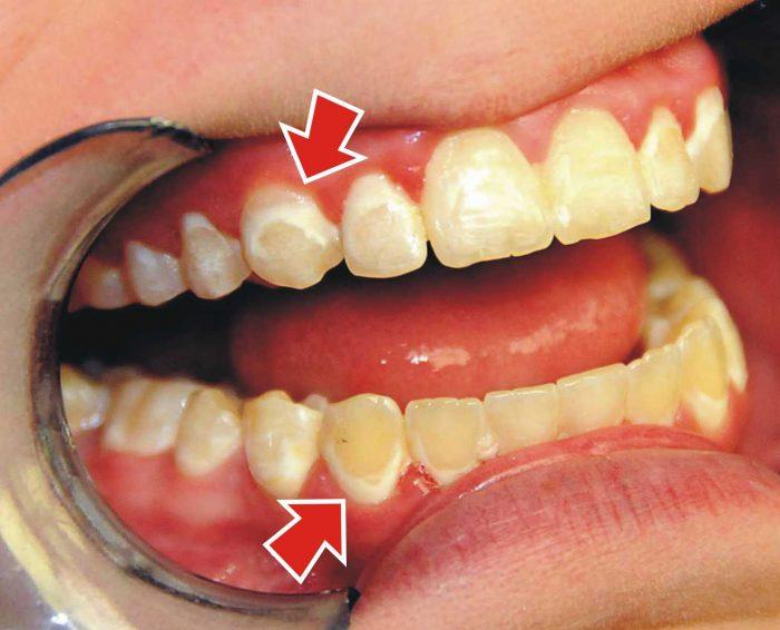 испорченная зубная эмаль