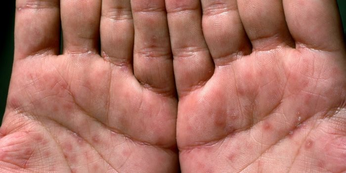 первые симптомы в виде небольших язвочек