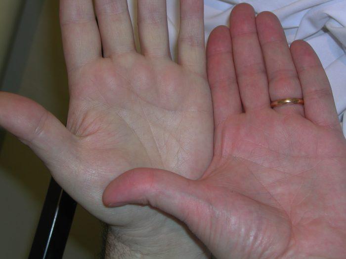 малокровие или анемия
