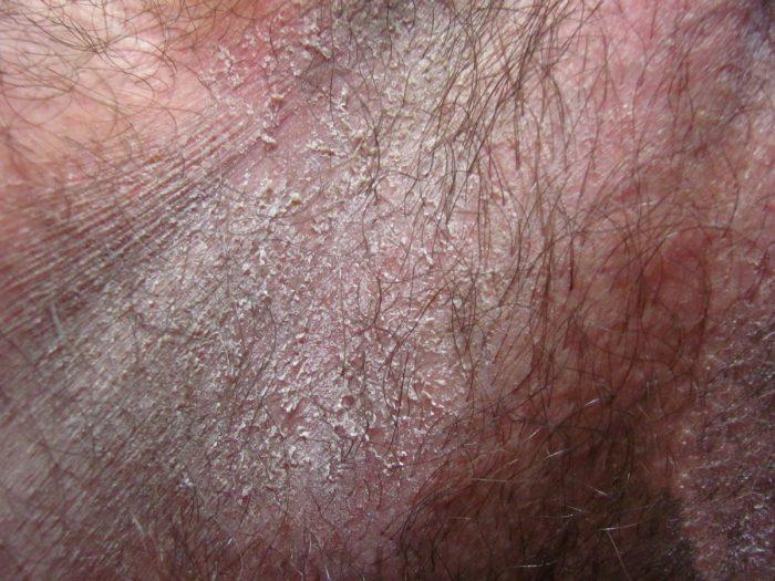 Шелушение крайней плоти у мужчин