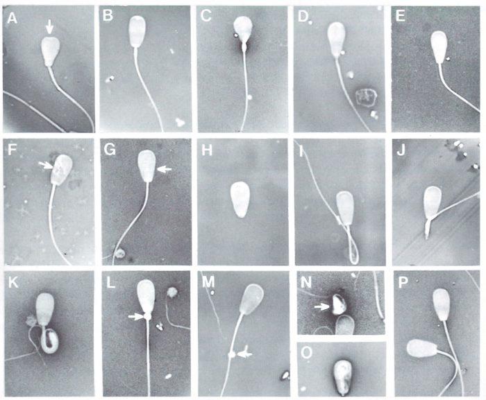 морфология спермограммы