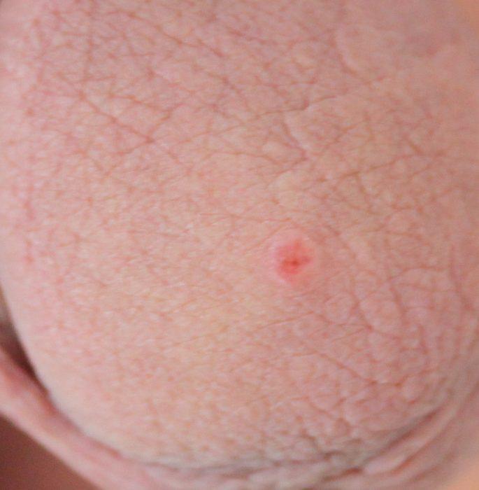 красная точка на головке у мужчин