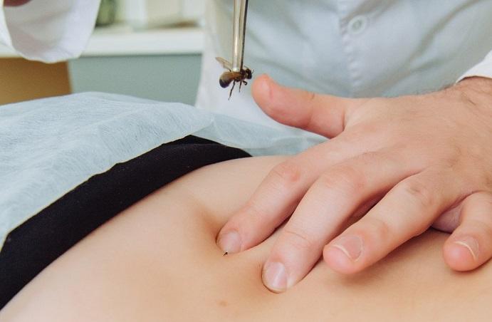 лечение простатита пчелами