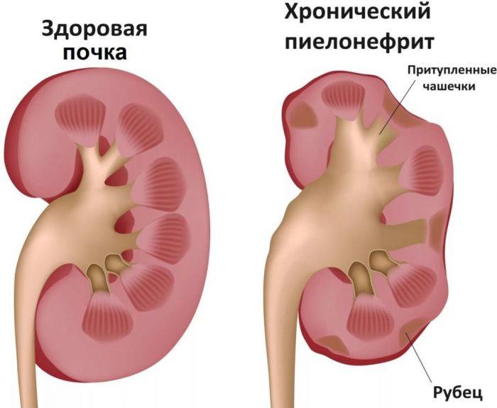 пиелонефрит как патология