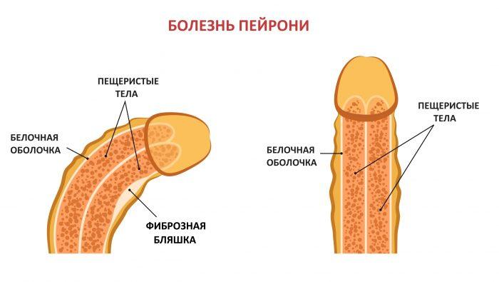 болезнь пейрони
