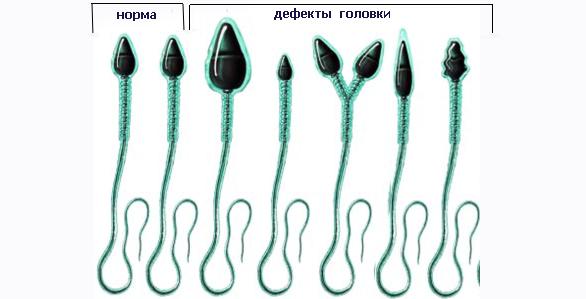 виды аномалий головки спермия