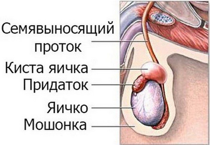 семенная киста