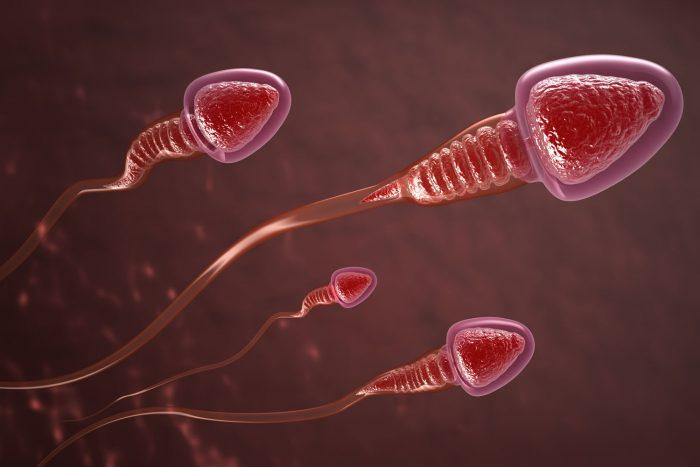 аномалии в строении сперматозоидов
