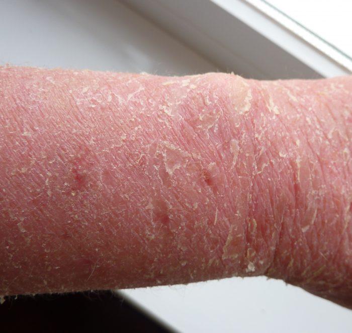 неинфекционное воспалительное заболевание