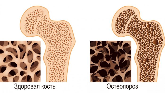 развивается остеопороз