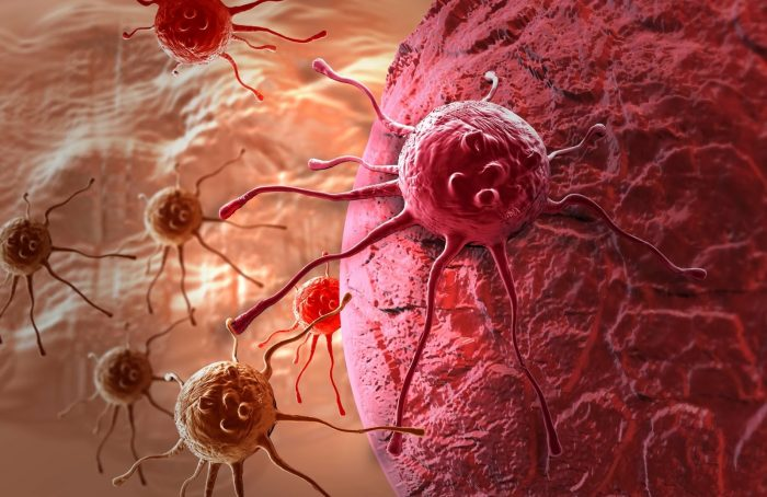 опухолевые новообразования в организме