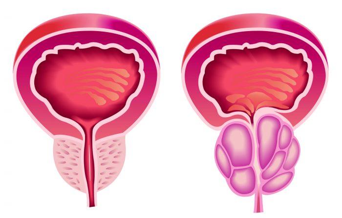 воспалительные процессы в мужской железе