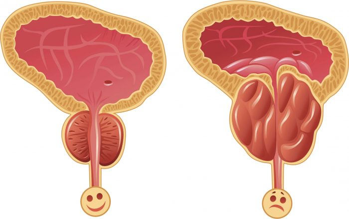 хроническая форма простатита