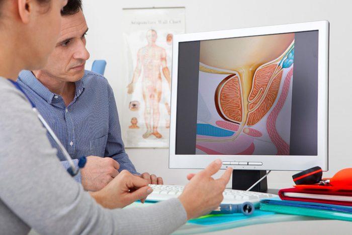 патологии предстательной железы
