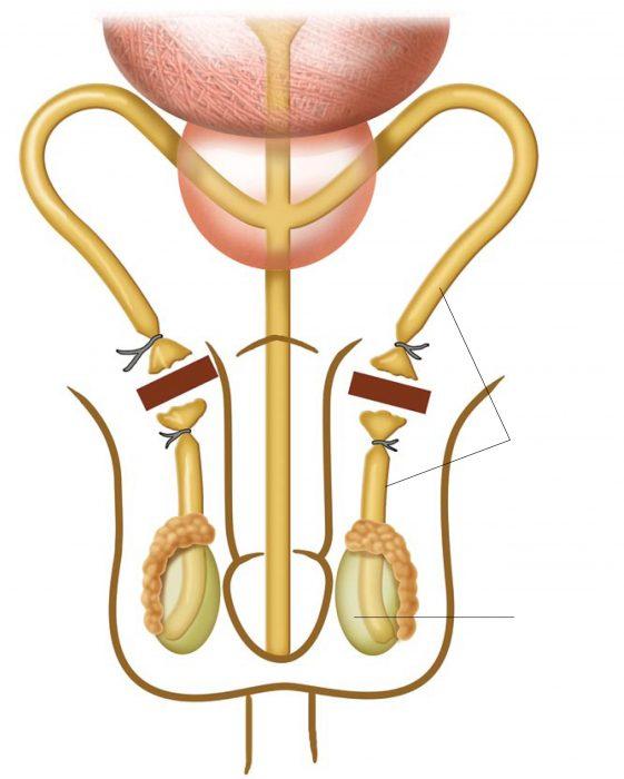 вазэктомия у мужчин
