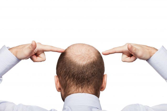 Лысина и тестостерон у мужчин — Волосы