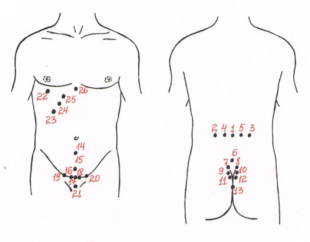 Схема лечения приставки пиявок