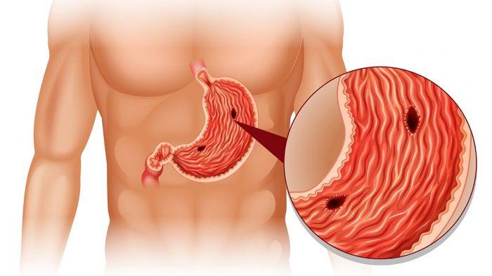 язвенные поражения желудка