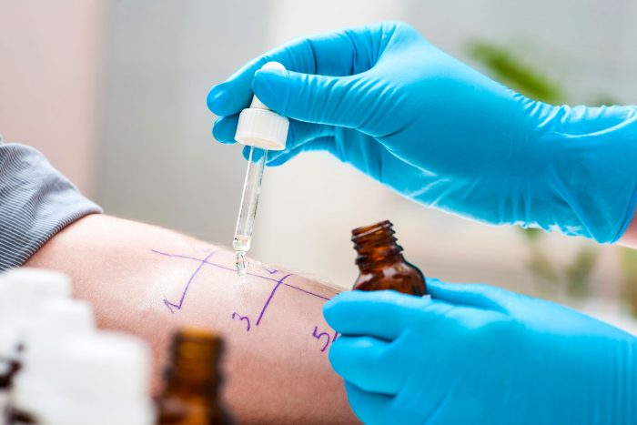 тест на аллергию