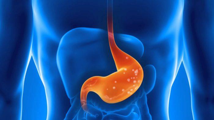 язва органов пищеварения